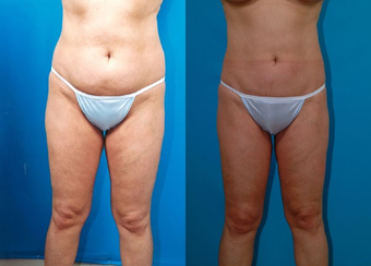 43-year-old woman treated with Liposuction. before 574539