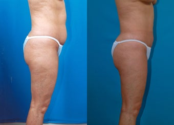 43-year-old woman treated with Liposuction. after 574539