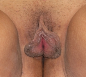 Labiaplasty before 935007