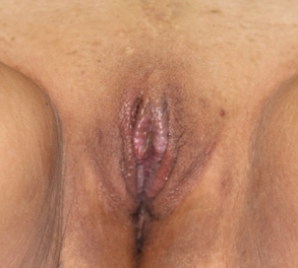 Labiaplasty after 935007
