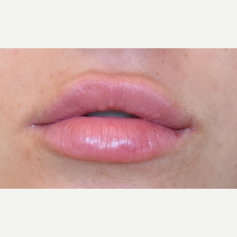 18-24 year old woman treated with Lip Augmentation after 3749623