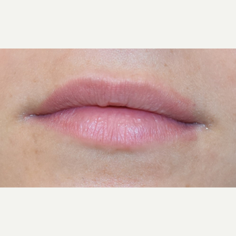18-24 year old woman treated with Lip Augmentation before 3749623