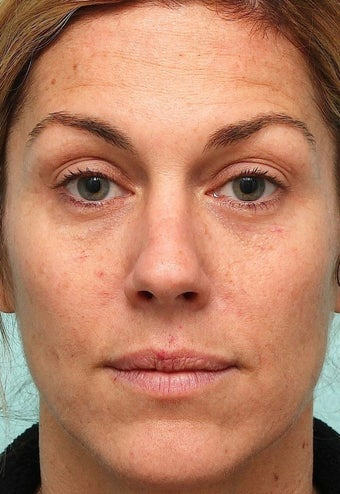 MicroLaser Peel / Laser Resurfacing and IPL  before 1034442