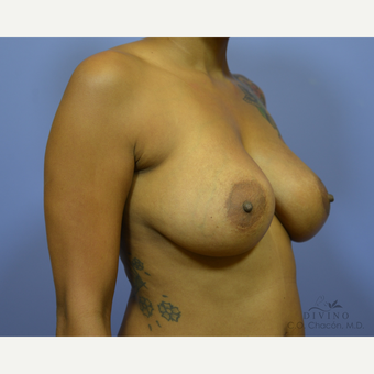 35-44 year old woman treated with Breast Implant Revision before 3421696