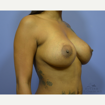35-44 year old woman treated with Breast Implant Revision after 3421696