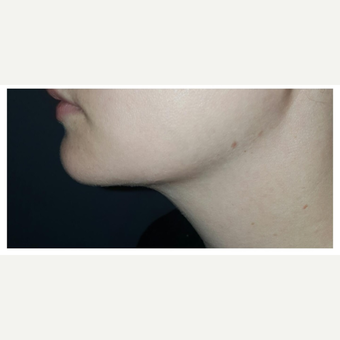 25-34 year old woman treated with Kybella after 2995075