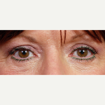 55-64 year old woman treated with Eyelid Surgery after 3696398