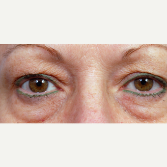 55-64 year old woman treated with Eyelid Surgery before 3696398