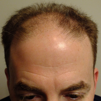 45-54 year old man treated with ARTAS Robotic Hair Transplant before 2803233