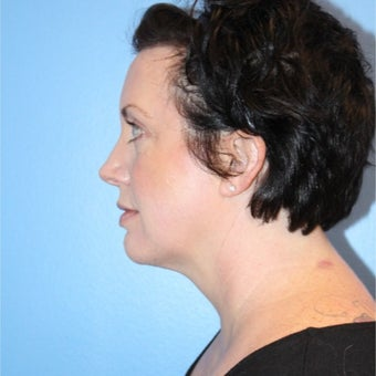 35-44 year old woman treated with Kybella after 2576553