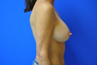 46 yo Woman Desired Perky Breasts after 921098