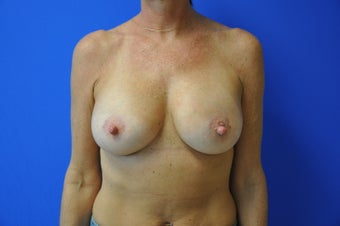 46 yo Woman Desired Perky Breasts 921098
