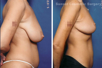 Breast lift (no implants) with nipple reduction after 902746
