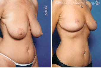 Breast lift (no implants) with nipple reduction before 902746