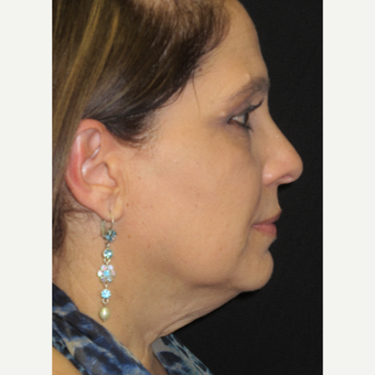 45-54 year old woman treated with Facelift before 3276729