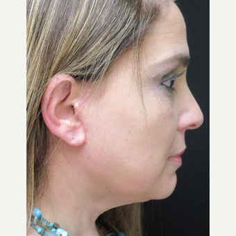 45-54 year old woman treated with Facelift after 3276729