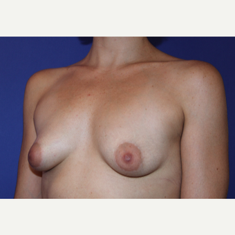25-34 year old woman treated with Breast Augmentation before 3631029