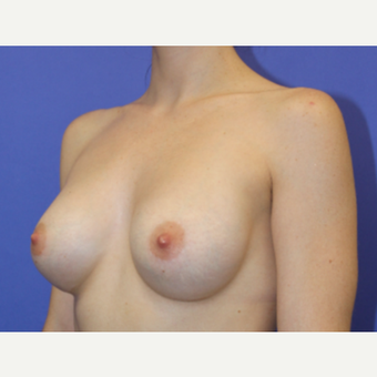 25-34 year old woman treated with Breast Augmentation after 3631029