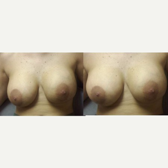 25-34 year old woman treated with Breast Fat Transfer