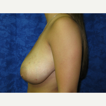 18-24 year old woman treated with Breast Lift before 3305845