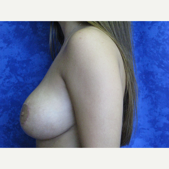 18-24 year old woman treated with Breast Lift after 3305845