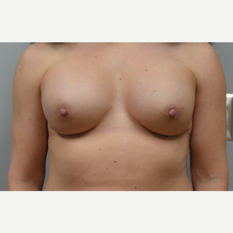 35-44 year old woman treated with Breast Reconstruction after 3167981