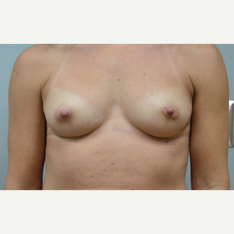 35-44 year old woman treated with Breast Reconstruction before 3167981