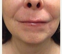 55-64 year old woman treated with Restylane Silk after 2490944