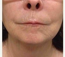 55-64 year old woman treated with Restylane Silk before 2490944