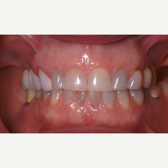 45-54 year old woman treated with All on 4 Full Arch Dental Implants before 3303611