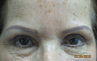 65-74 year old woman treated with Ptosis Surgery and blepharoplasty