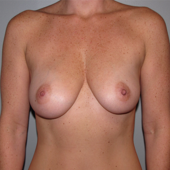 35-44 year old woman treated with Breast Augmentation before 3147657