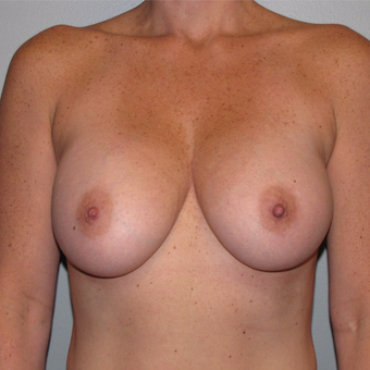 35-44 year old woman treated with Breast Augmentation after 3147657
