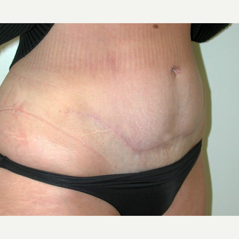 Tummy Tuck after 3108744