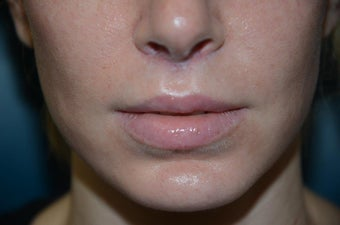 Before and Two Weeks After Upper Lip Lift after 1038518