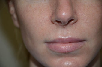 Before and Two Weeks After Upper Lip Lift before 1038518