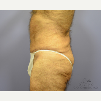 65-74 year old man treated with Tummy Tuck after 3422110
