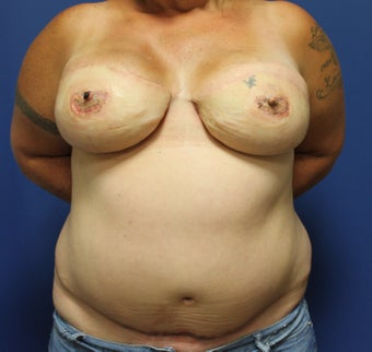 52 year old bilateral breast reconstruction with free TRAM flaps after 1254576