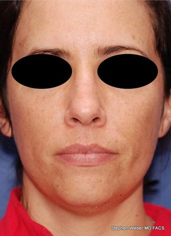 25-34 year old woman treated with Rhinoplasty before 3624175