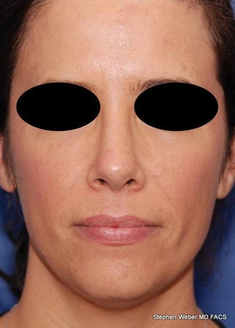 25-34 year old woman treated with Rhinoplasty after 3624175
