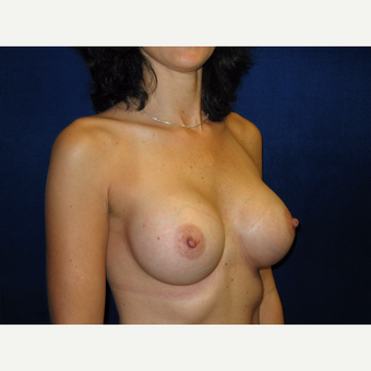 35-44 year old woman treated with Breast Implants after 3711796