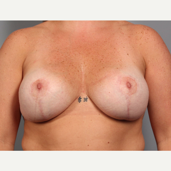 35-44 year old woman treated with Breast Implant Revision after 3588482