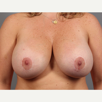 35-44 year old woman treated with Breast Implant Revision before 3588482