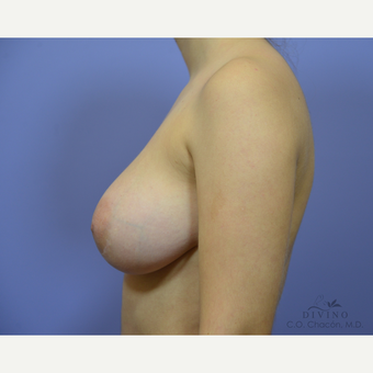 18-24 year old woman treated with Breast Augmentation after 3329335