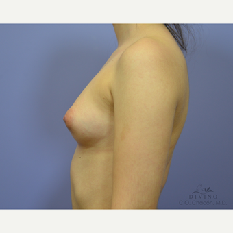18-24 year old woman treated with Breast Augmentation before 3329335