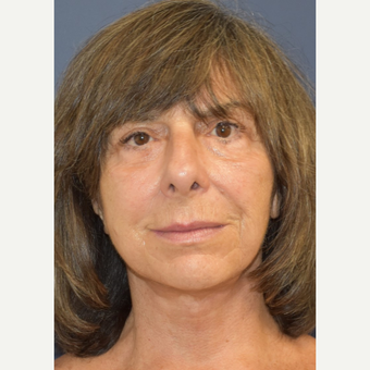65-74 year old woman treated with Lower Face Lift after 3213985
