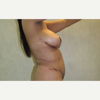 25-34 year old man treated with Breast Reduction after 3059983
