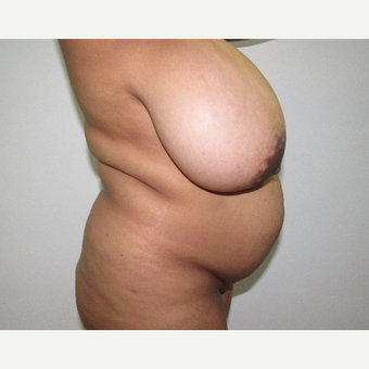 25-34 year old man treated with Breast Reduction before 3059983