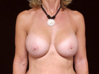 53 Year Old Female Breast Augmentation after 852825