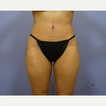 35-44 year old woman treated with Tummy Tuck after 3421968